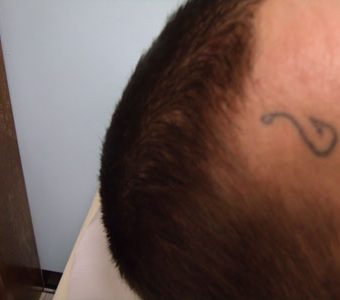 Local Tattoo Lansing Michigan Monica Drake tattoo removal before