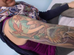 Arm Tattoo Laser Removal After