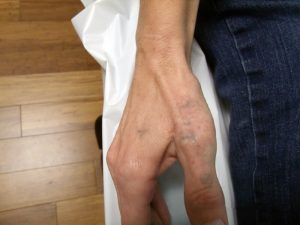 Hand Tattoo Laser Removal After