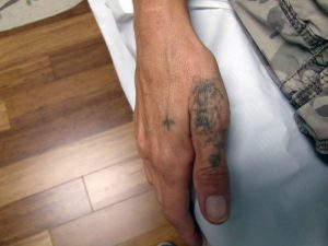 Hand Tattoo Laser Removal Before